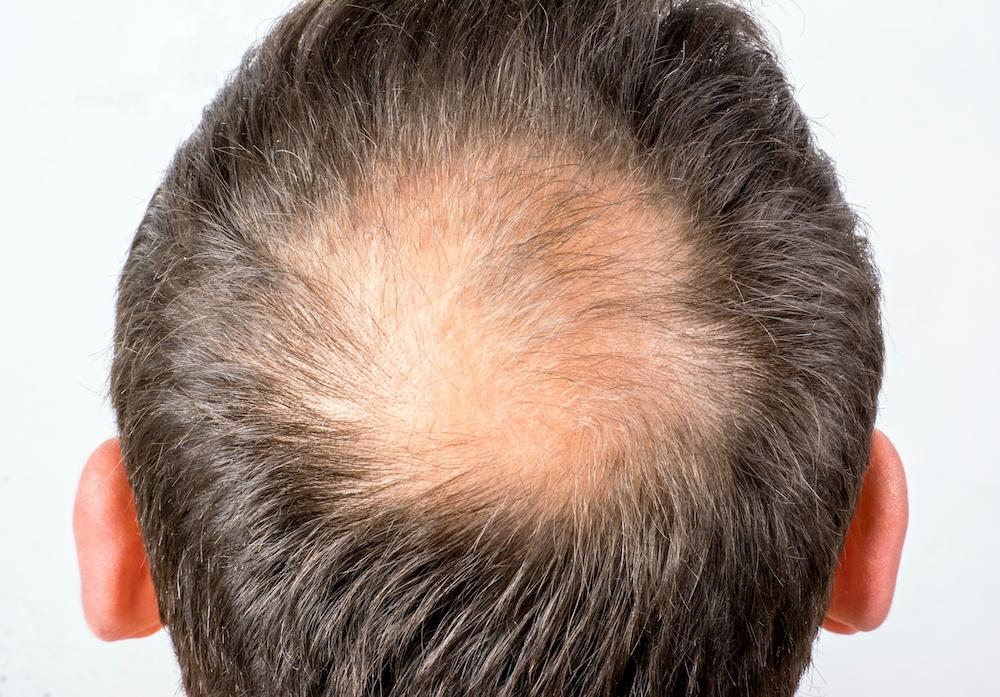 Halbglatze frisuren mit Coole Frisur